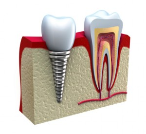 animated dental implant and natural tooth comparison