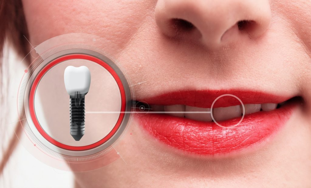 Woman with dental implant from implant dentist