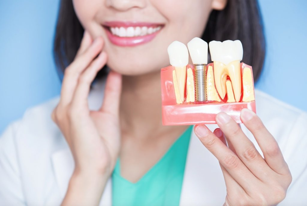 Dentist holding model of dental implant